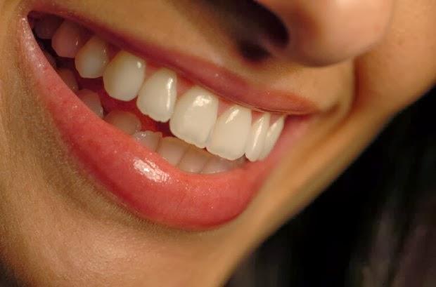 clareamento caseiro dos dentes