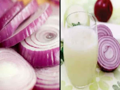 عصيرالبصل,البصل لعلاج الشعر