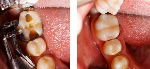 Sâu răng chữa như thế nào