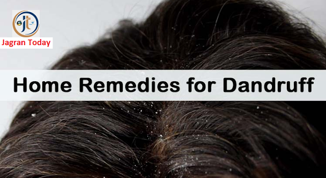 Remove Dandruff using Natural Ways