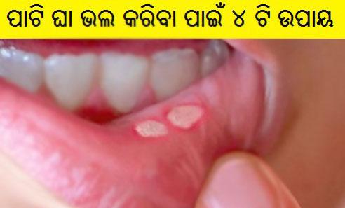 Cure the Mouth Wound in Easy 4 Way (ପାଟି ଘା ଭଲ କରିବା ପାଇଁ, ପଢନ୍ତୁ ଏହି ୪ ଟି ଉପାୟ )