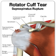 Health News: Easy Physical Therapy After A Rotator Cuff Injury For First Aid