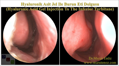 Boş burun sendromu tedavisinde Hyaluronik Asit dolgusu - Burun eti dolgusu - Treatment of Empty nose syndrome with hyaluronic acid filler - Boş burun - Geniş burun boşluğu sendromu - Burun eti büyütülmesi - Empty Nose Syndrome (ENS) - Hyaluronic acid gel in the treatment of empty nose syndrome - Empty Nose Syndrome - Treatment of Empty Nose Syndrome - Treatment of Empty Nose Syndrome in Istanbul