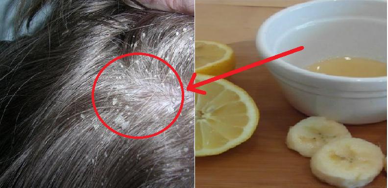 Terapi Jeruk Lemon Bagi Penderita Asam Lambung Tinggi