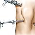 Entendendo a Artroscopia