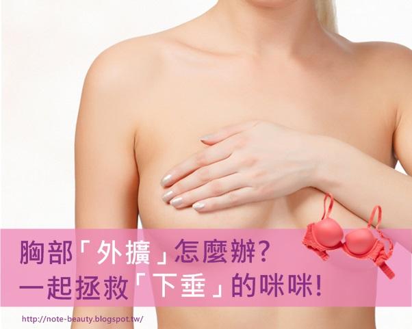 胸部外擴怎麼辦?