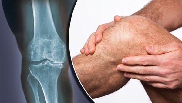 Электроприбор для лечения суставов ноги профилактика хруста и боли в суставах, чем необходимо питаться