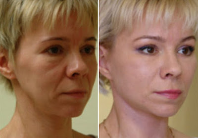 Botox Active Expert - маска для лица