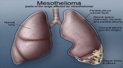 Mesothelioma Advice - Questions And Answers