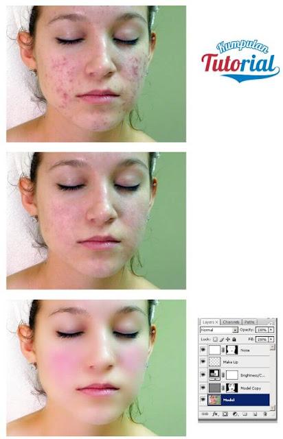 Cara Menghaluskan Wajah Berjerawat dengan Photoshop,  membersihkan muka dengan photoshop, cara mudah mengedit kulit wajah dengan photoshop, cara menghaluskan kulit wajah berjerawat di photoshop, mengedit foto muka berjerawat dengan photoshop cs3, cara edit wajah, memperbaiki kulit wajah model dengan photoshop.