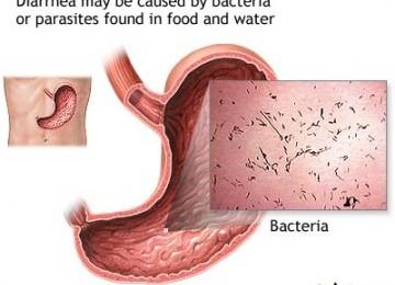 What Causes Diarrhea
