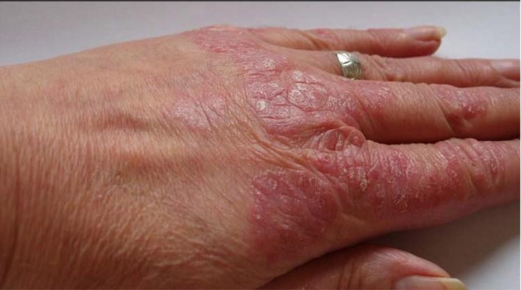 La psoriasis el tratamiento en izraile sobre el mar muerto