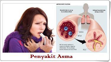 milagros untuk asma