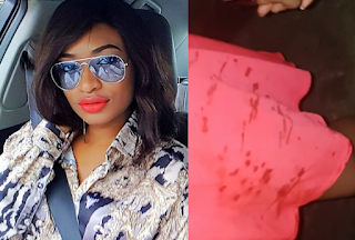 Former Miss Earth Nigeria, Marie Miller narrates how she was attacked by a traffic robber in onipan, Lagos (photos)