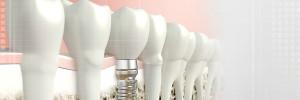 como son los implantes dentales
