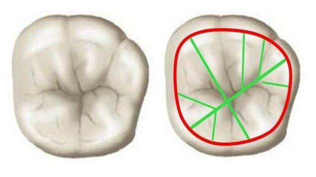 Milford Dentists Blog: White Fillings versus Dental Amalgam