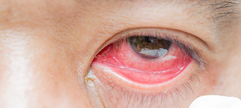 9eb2b9f10b ¿Piensa enjuagarse los ojos con el agua del inodoro del hospital es  repugnante? En ese caso, lo que los investigadores encontraron en las lentes  de contacto ...