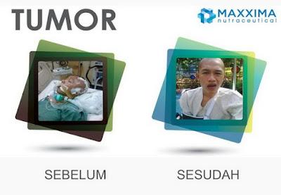 CellMaxx ampuh perangi tumor