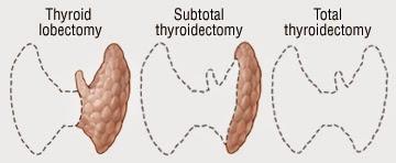 http://www.laparoscopic-general-surgery.com/head&neck-surgery-thyroidectomy.html