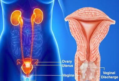 Dr Ajays Homeopathy : Homeopathy for Uterine fibroid can
