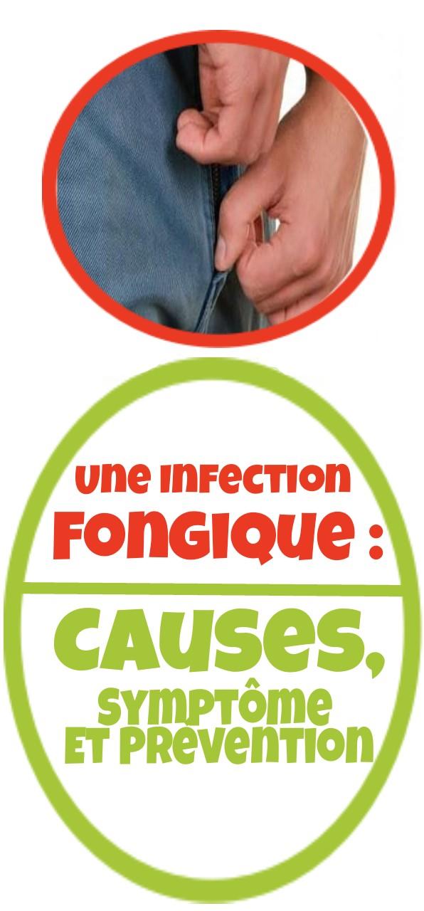 Une infection fongique : Causes, Symptôme et prévention