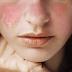 Gejala Penyakit Lupus Yang Harus Kamu Tahu