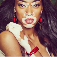 winnie harlow vitiligo model