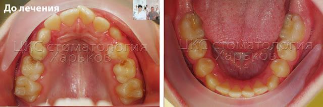 Форма зубных рядов пациента до лечения