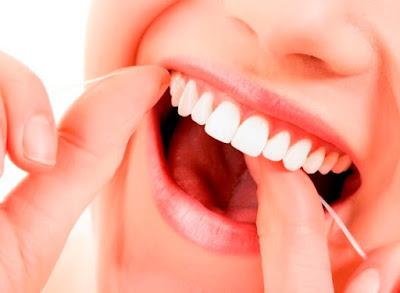 Cara Ampuh Menghilangkan Karang Gigi Yang Membandel