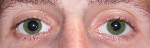 Eine Pupille Größer Als Die Andere