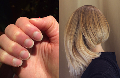 Boosts Hair and Nail Growth