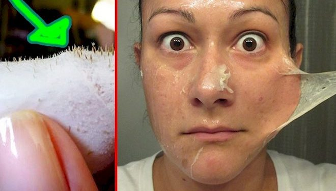 Miracle Recipe To Get Rid Of The Blackheads