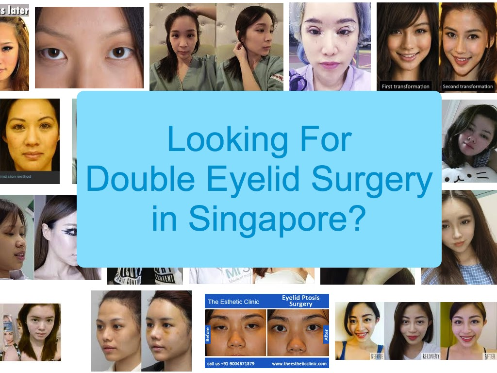 Double Eyelid Surgery Singapore: Prices and Reviews 2019