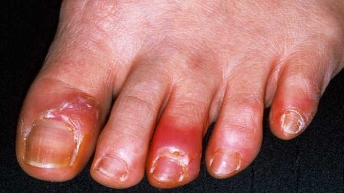 how to get rid of fungus on bottom of feet