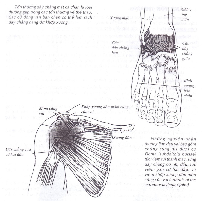 Bong gân, trật khớp là tổn thương phổ biến khi vận động