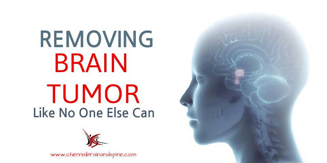 Brain Tumor Treatment in Chennai