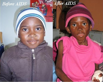 Hiv Patient Before And After