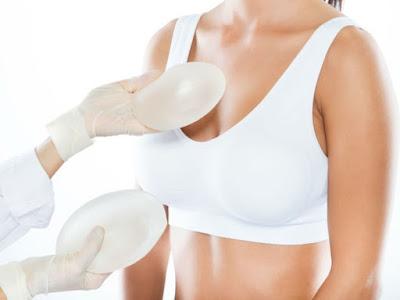 Les femmes avec des implants mammaires peuvent développer un type de cancer étrange