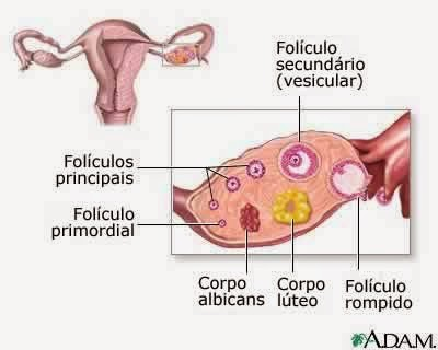 Luteo ovario esquerdo cisto