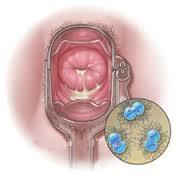 Cara Mengatasi Gonorrhea Kencing Nanah