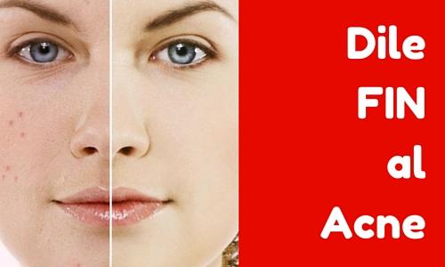 El acné por las infracciones endocrinas