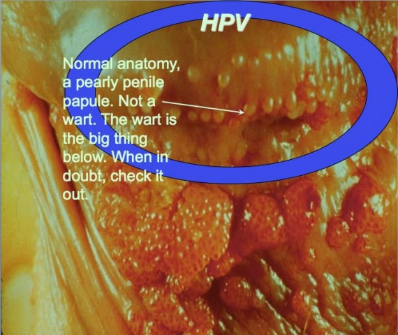 Fact of Herpes vs Genital Warts | Herpes Genital