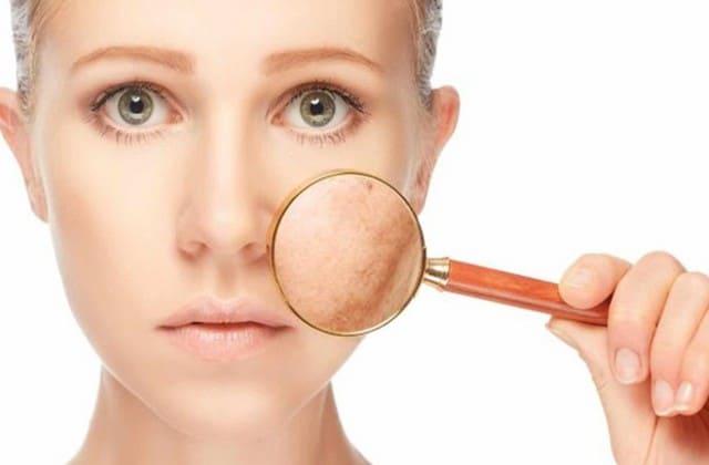 Jenis kulit sensitif