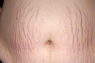 YOUR SKIN AND STRETCH MARKS | HEALTHY LIVING PLUS (+) COMPANY
