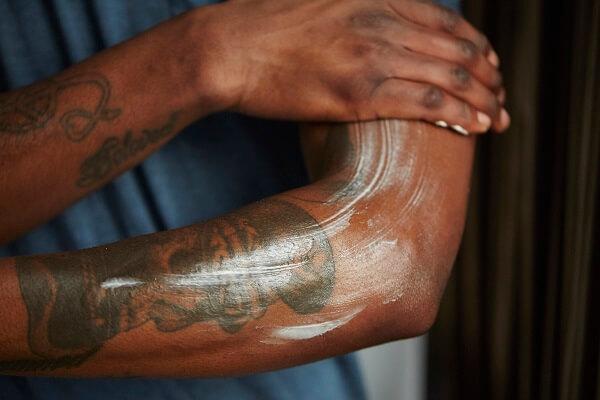 Eliminar tatuaje con cremas