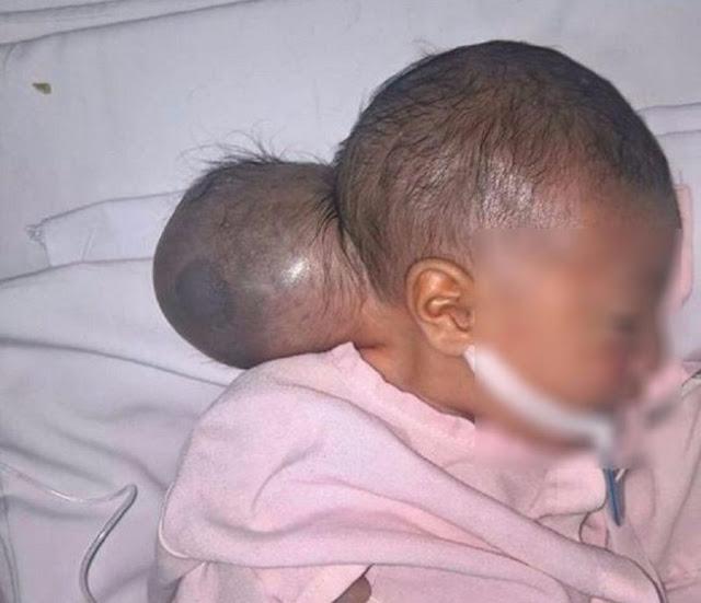 Bé gái '2 đầu' bị bỏ rơi được phẫu thuật thành công tại BV Nhi Đồng 1