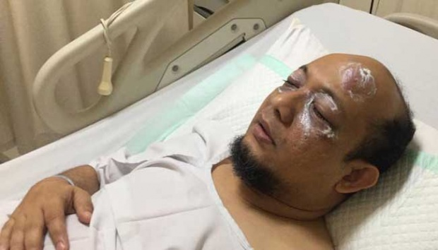 Kasus Novel dan Jazuli, Pengamat Kepolisian: Polisi Terkesan Asal Menjawab