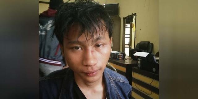 Sadis! Anak Jenderal Polisi Ini Luka Parah, Usai Adu Jotos dan Terakhir Dicelurit Lantaran Ganggu Cewek Pria Ini....