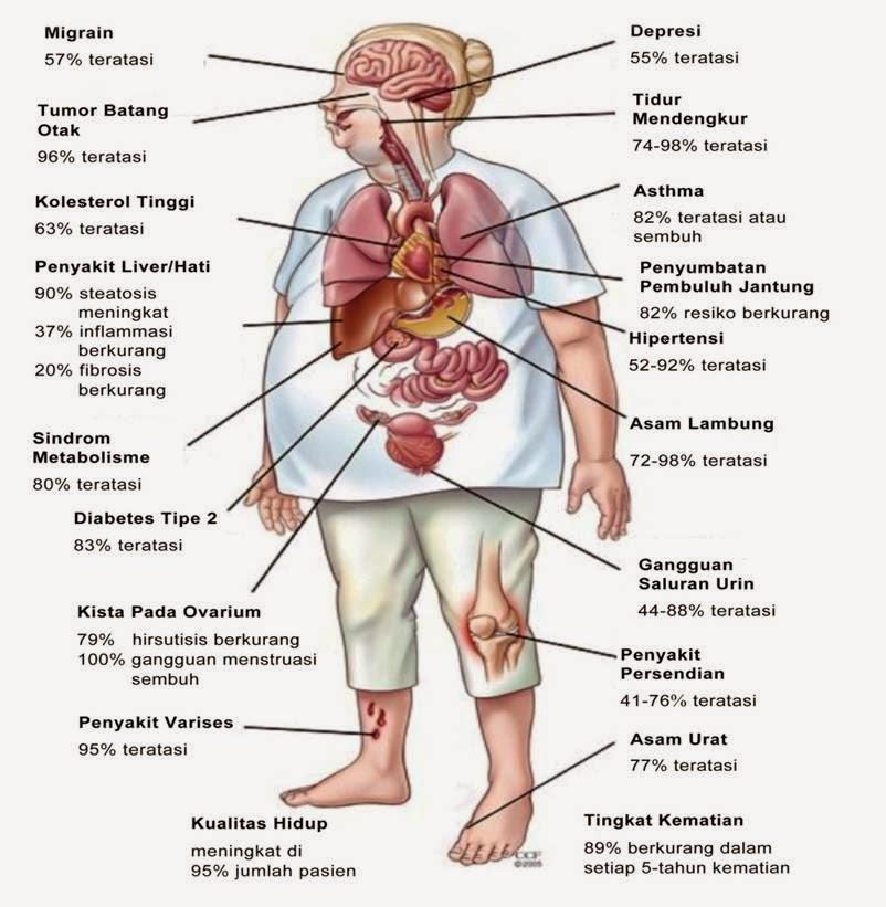 Faktor Risiko Obesitas Sentral Pada Anggota Kepolisian Resort Kabupaten Ogan Komering Ilir