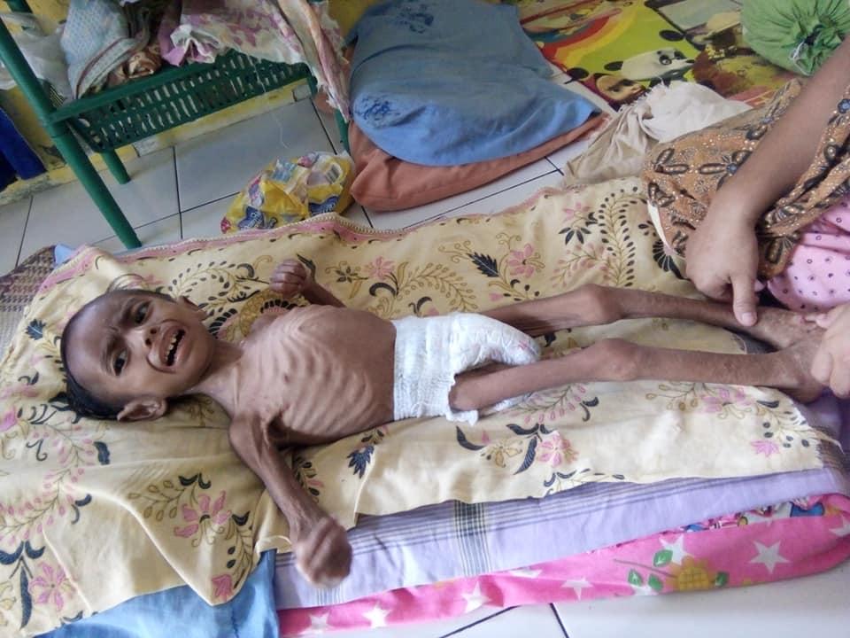 LPD dan Atjeh Connection Foundation  dampingi Intan Anak penderita Gizi Buruk.